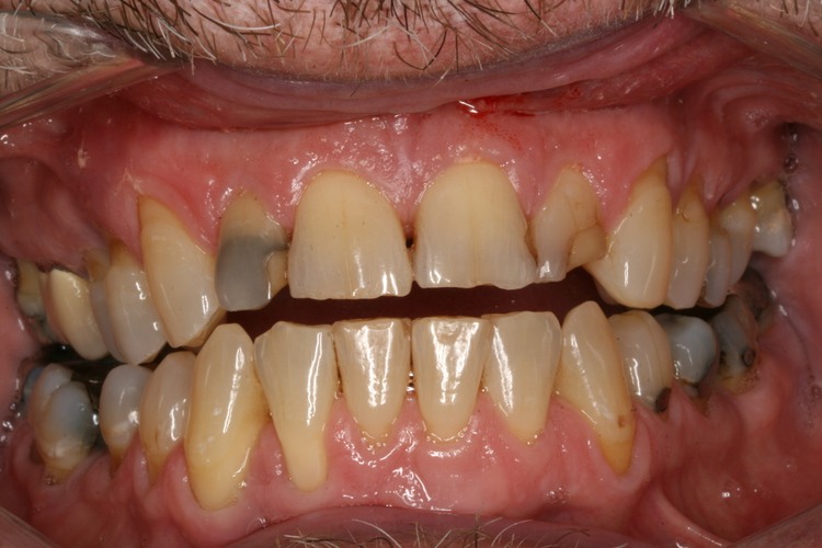 Broken Down Anterior Teeth