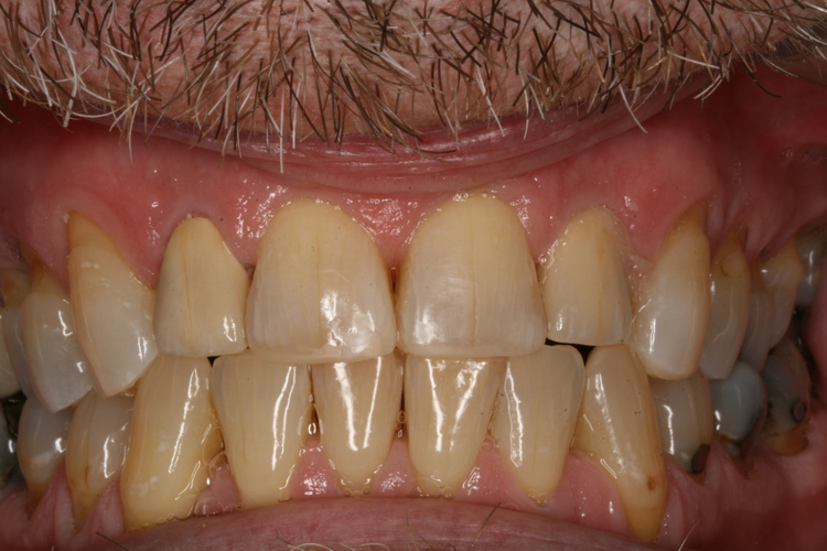 Broken Down Teeth Repaired with Crowns and Tooth Colored Restorations