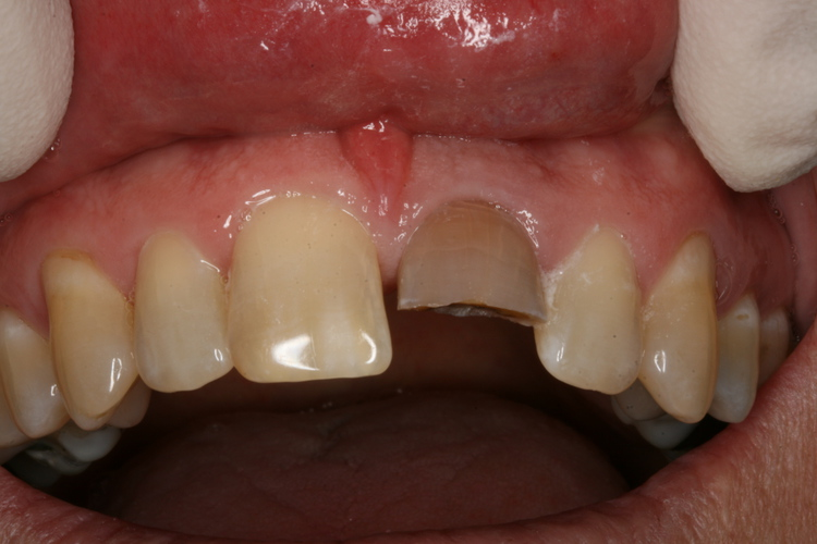 Fractured discolored tooth