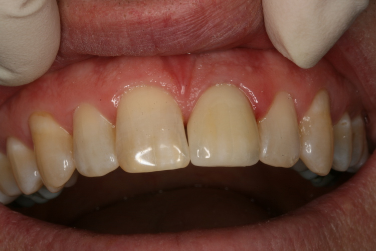 After Fractured tooth repaired  all ceramic crown