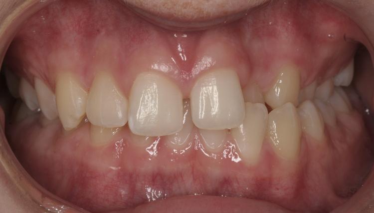 Pre-Op Orthodontics